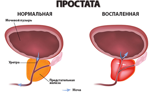 Юнидокс от простатита отзывы