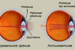 Астигматизм глаза в схематическом изображении