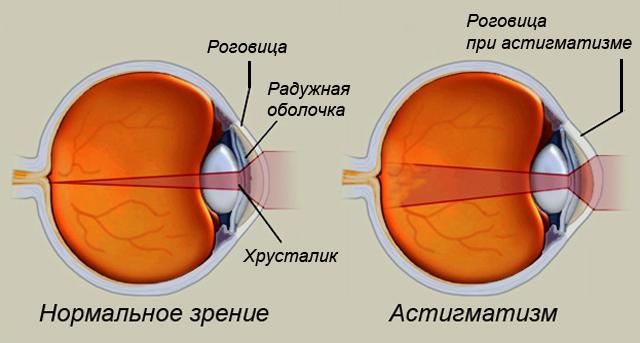 Резко ухудшилось зрение дальнозоркость