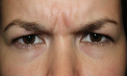 Восстановление зрения жданов упражнения