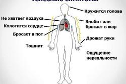 Симптомы при вегето-сосудистой дистонии