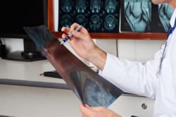 Предоставление рентгеновских снимков, удостоверяющих наличие сколиоза